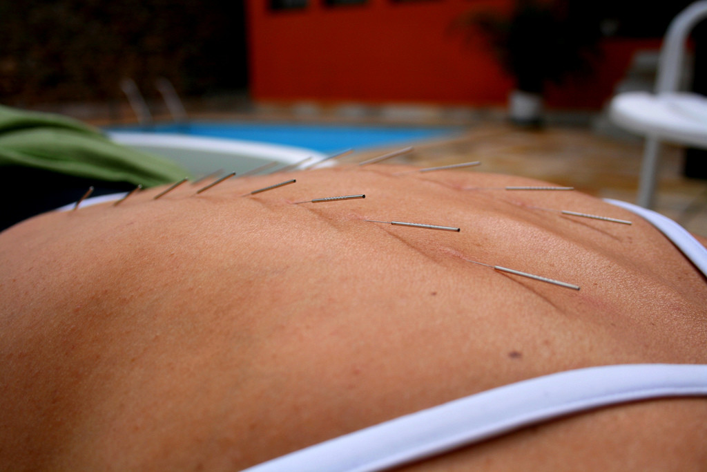 Acupuncture Against Inflammation